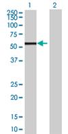 Western blot - PTENP1 antibody (ab67831)