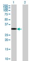 Western blot - PPP1R2P9 antibody (ab67832)