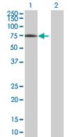 Western blot - MTMR14 antibody (ab67833)