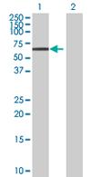 Western blot - CCDC83 antibody (ab67837)