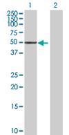 Western blot - Serine/threonine-protein kinase NIM1 antibody (ab67838)