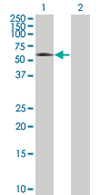 Western blot - Tau tubulin kinase 2 antibody (ab67839)
