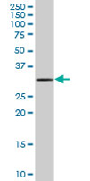 Western blot - MOBKL2C antibody (ab67840)