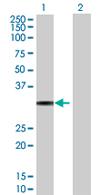 Western blot - IRAK1BP1 antibody (ab67841)