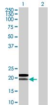 Western blot - MRPL18 antibody (ab67844)