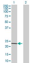 Western blot - Mitochondrial ribosomal protein L11 antibody (ab67845)