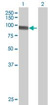 Western blot - HB1SL antibody (ab67846)