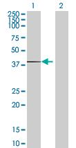 Western blot - Ribosomal protein SA pseudogene antibody (ab67847)
