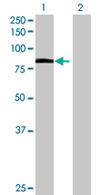 Western blot - SCY1 like 3 antibody (ab67852)