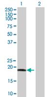Western blot - C9orf89 antibody (ab67856)