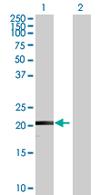 Western blot - LY6G5B antibody (ab67858)