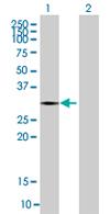 Western blot - SNTB2 antibody (ab67861)
