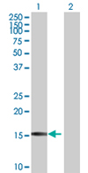 Western blot - Tumor protein D52 like 3 antibody (ab67863)