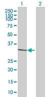 Western blot - JAZF1 antibody (ab67864)