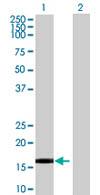 Western blot - FBXW5 antibody (ab67865)