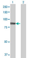 Western blot - HIPK4 antibody (ab67868)