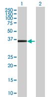 Western blot - NACA1 antibody (ab67872)