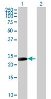 Western blot - ZNF486 antibody (ab67873)