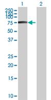 Western blot - ZNF317 antibody (ab67874)