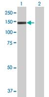Western blot - E4F1 antibody (ab67875)