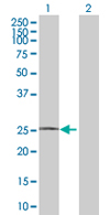 Western blot - RHOXF1 antibody (ab67876)