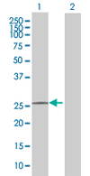 Western blot - C9orf152 antibody (ab67877)