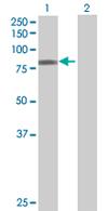Western blot - ZBTB39 antibody (ab67878)