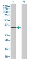 Western blot - CAPZA2 antibody (ab67879)