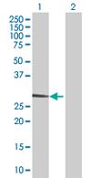 Western blot - STOM antibody (ab67880)