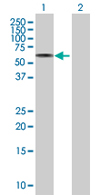 Western blot - ZNF350 antibody (ab67881)
