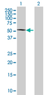 Western blot - PHF22 antibody (ab67885)