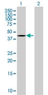 Western blot - ZNF331 antibody (ab67886)