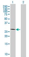 Western blot - ZNF32 antibody (ab67888)
