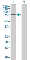 Western blot - DBR1 antibody (ab67891)