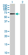 Western blot - PPP1R16B antibody (ab67892)