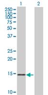 Western blot - MRPS11 antibody (ab67893)