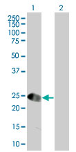 Western blot - DSCR1L1 antibody (ab67896)