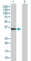 Western blot - SLC25A36 antibody (ab67914)
