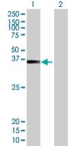 Western blot - ZNF514 antibody (ab67918)
