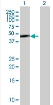 Western blot - ASCC1 antibody (ab67919)
