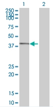 Western blot - IQCD antibody (ab67920)