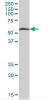 Western blot - PXK antibody (ab67923)