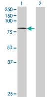 Western blot - DYNC1I2 antibody (ab67926)