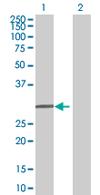 Western blot - SHOX antibody (ab67927)