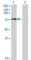 Western blot - URP2 antibody (ab67928)