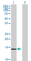 Western blot - TXNL4B antibody (ab67929)