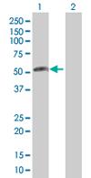 Western blot - C18orf22 antibody (ab67930)