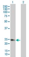 Western blot - FGFBP1 antibody (ab67931)