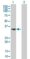 Western blot - TGDS antibody (ab67932)