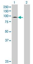 Western blot - SLC26A6 antibody (ab67959)